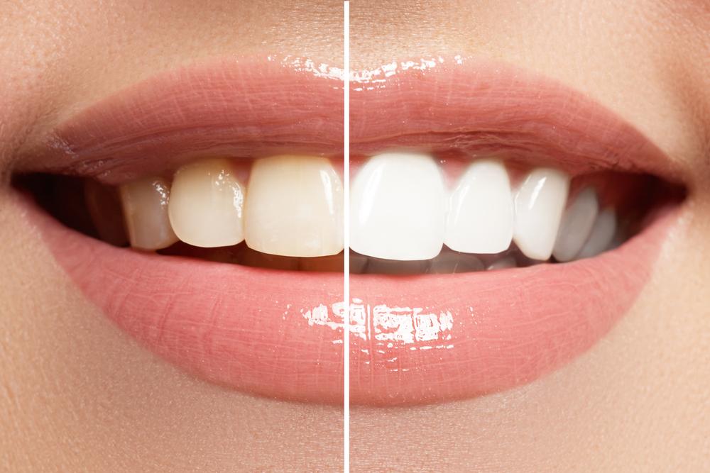 teeth whitening vitamins